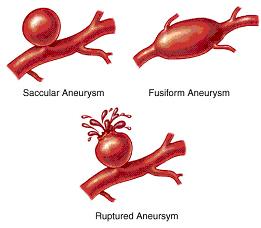 กระเปาะ หลอดเลือดสมอง โป่งพอง โรคร้ายที่รักษาได้